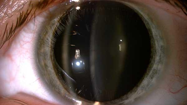 cataracte congenitale cataracte def cataracte operation cataracte symptome dr gavrilov ophtalmo paris cristalin clair
