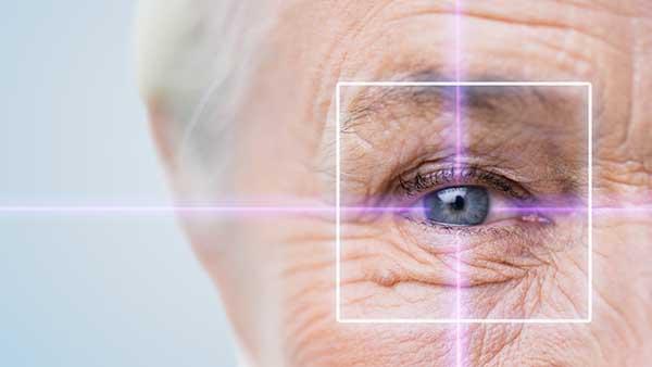 technique smile ophtalmologie smile ophtalmologie smile yeux technique smile yeux smile operation yeux dr gavrilov ophtalmo paris